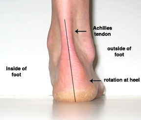 Pronated-foot-pre-correction